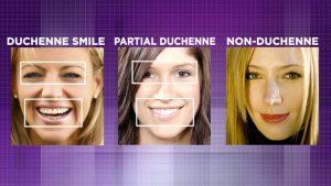 Duchenne Gülüşü (solda), Kısmen Duchenne Gülüşü (ortada), non-Duchenne Gülüşü (sağda)
