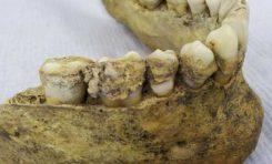 Diş Plağında Süt Tüketimi İzleri