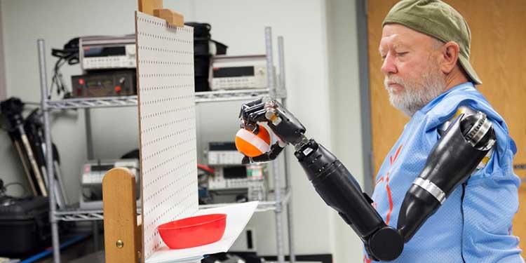 Protez Kollarda Devrim Yaratacak Teknoloji!