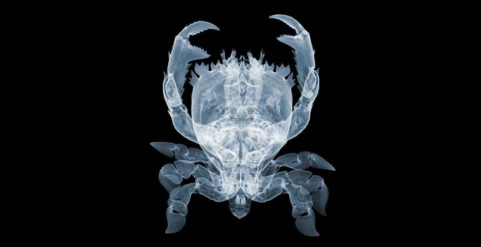 dogaya-bakisinizi-degistirecek-15-x-ray-goruntusu-bilimfilicom13