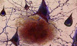 Umut Verici Yeni Alzheimer Tedavisi