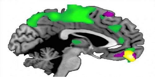 ventro orta prefrontal korteks (sarı bölge) diğer insanlara daha fazla güvenen insanlarda, diğer insanlara daha az güvenen insanlardakine kıyasla daha büyüktür.