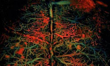 Beyindeki kan akışını izlemenin hızlı bir yolu