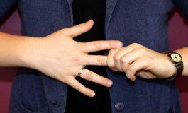 Parmaklarınızı Çıtlattığınızda Neler Oluyor?