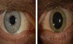 Ebola, doktorun göz rengini değiştirdi !