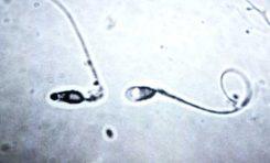 Laboratuvarda İlk Kez Sperm Üretildi