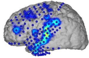 Elektrokortikografi ile kaydedilen beyin aktivitesi (mavi noktalar). Aktivite örüntülerinden (mavi/sarı) konuşulan sözcükler tanınabiliyor. Fotoğraf: CSL/KIT