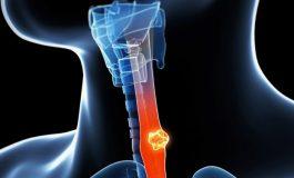 Erkeklerde özofajiyal kanser oranı %50 arttı