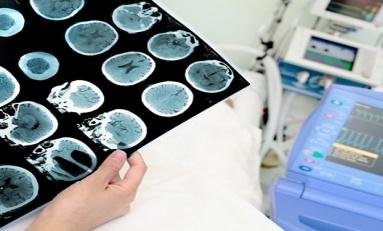 Kan Grubunuz Alzheimer Olma Riskinizi Etkileyebilir