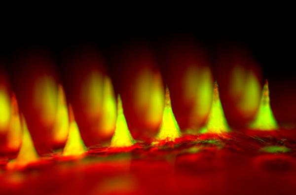 Figür 2 : İnsülinlerin yeşil renk ile işaretlendiği mikroiğnelerin yakın çekim flüoresan görüntüsü. Görsel : Zhen Gu, PhD