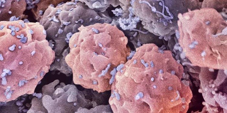 Süperşarj kök hücreler ile yeni terapi