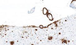 Proteinlerin Yanlış Katlanması Beyin Hastalıklarına Sebep Olabilir