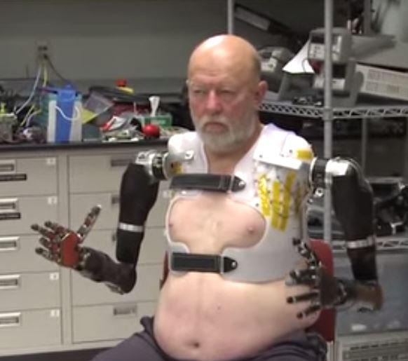 protez-teknolojisinde-devre-tamamlandi1-bilimfilicom