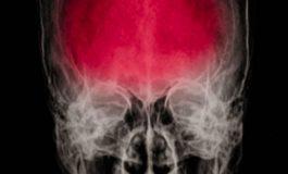 Beyin İltihabının Erken Tedavisi ile Şizofreni Önlenebilir!