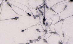Ebola Virüsü Cinsel Yolla Bulaşabilir mi?
