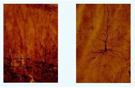 Fotoğraf : Cajal'ın hazırladığı ve bugün Madrid'deki Cajal Enstitüsü'nde bulunan Cajal Müzesi'nde sergilenmekte olan, yeni doğan nöronlarının Golgi metodu ile boyanmış fotomikrograf görüntüleri.