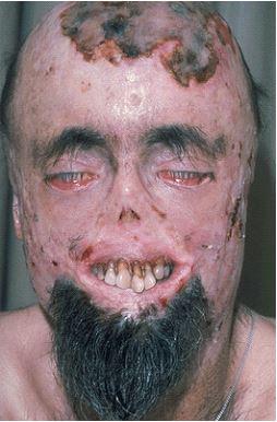 Görsel : Porfiria görülen bir hasta