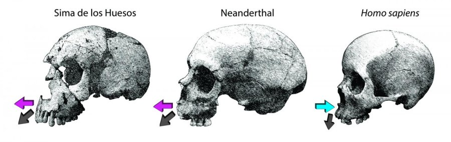 Growth directions of the maxilla in the Sima de los Huesos (SH) and Neanderthals compared to modern humans. This impacts facial growth in at least two ways. (i) Extensive bone deposits over the maxilla in the fossils are consistent with a strong forward growth component (purple arrows); whereas resorption in the modern human face attenuates forward displacement (blue arrow). (ii) Deposition combined with larger developing nasal cavities in the fossils displaces the dentition forward generating the retromolar space characteristic of Neanderthals and also in some SH fossils.