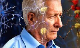 Alzheimer Riski Yaşlılık İle İlgili Olumsuz Düşüncelerle Artıyor