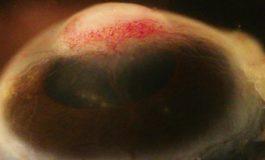 Kronik İnflamasyon ile Göz Hücrelerinin Deriye Dönüşümü