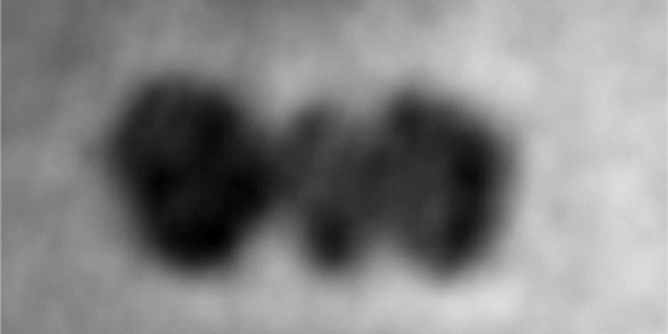 İlk Kez 'Tek Bir Protein Molekülü'nün Fotoğrafları Çekildi