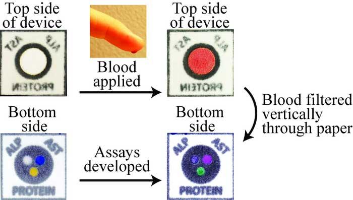kagittan-yapilan-minik-cipler-ile-karaciger-fonksiyon-testleri-1-bilimfilicom