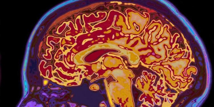 Bireysel Beyin Farklılıkları Mental Yetenekleri Şekillendiriyor