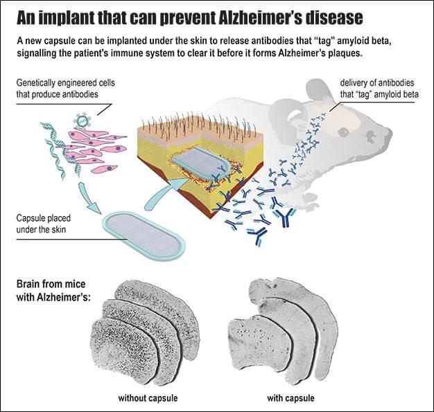 alzheimer-engelleyen-implant-bilimfilicom