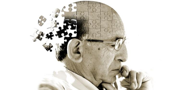 Alzheimer'ı Engelleyebilecek İmplant Geliştirildi