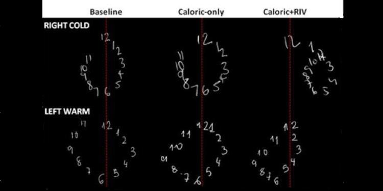 Büyük ve Küçük Sayılar Beynin Farklı Yarıkürelerinde İşleniyor