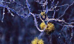 Alzheimer Tedavisinde Umut Verici Gelişme