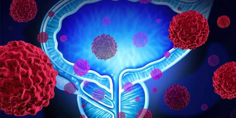 Kullanılan Prostat Işıldar