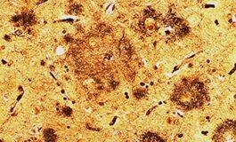 Alzheimer Hastalığından Sorumlu İki Protein : Amiloid ve Tau