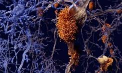 Beynin Mikroplardan Korunma Şekli Alzheimer'a Yol Açabiliyor