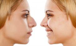 Burnunuzun Olduğu Gibi Görünmesini Sağlayan 5 Gen Belirlendi