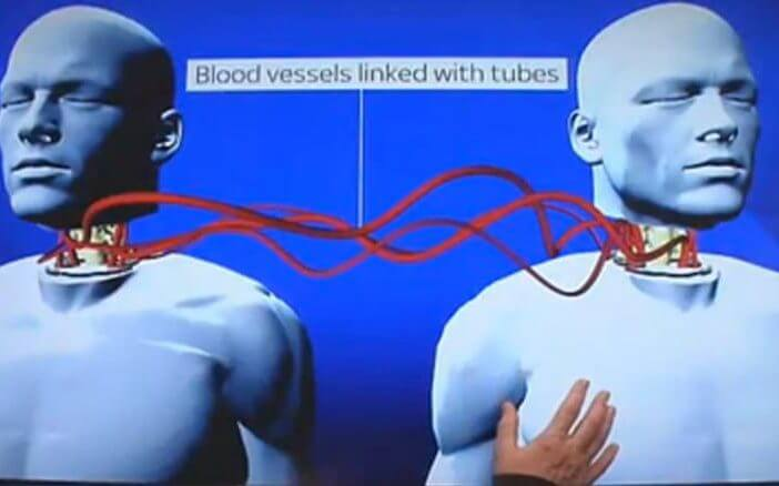 kan-damarları-kafa-nakli-bilimfilicom