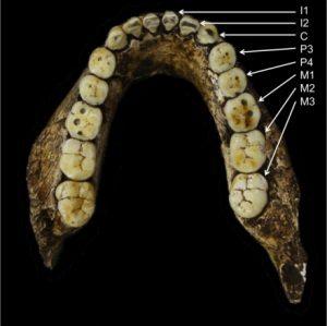 İlkel atalarımız çok farklı dişlere sahiptiler. Homo cinsinin ilk halleri ilkel Afrikalı atalarımız çenenin arka kısmına doğru giderek büyüyen azı dişlerine sahiptiler. Homo cinsinde ise, bu örgü değişti, böylelikle çenenin her iki tarafındaki dişler küçülürken ilk azı dişi (M1) en büyük diş oldu. Fotoğrafta, P3 ve P4; dişleri küçük azıları, C; köpek dişini ve M ise azı dişlerini gösteriyor. (Credit:lawnchairanthropology) -bilimfili.com