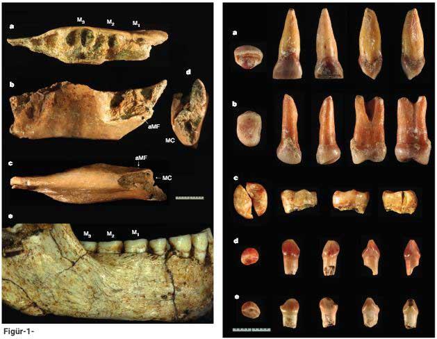 Figür-1: Orijinal Homo Floresiensis olarak bilinen Liang Bua çene kemiği ile yeni keşfedilen örnek 'SOA-MM4' çenesinin karşılaştırması. a - üstten; b- yandan ; c- alttan ve d- önden SOA-MM4 kemiği görüntüleri. e - LB6/1 çene kemiğinin yandan görünüşü. M1 - Birinci azı dişi, sırasıyla M2 ve M3 ikinci ve içincü azı dişleri; MC - mandibular (alt çene) kanalı, aMF - aksesuar mental foramen (bu yapı nadir görülen bir çene kemiği özelliğidir ve normal mental foramenlerin yanı sıra tür benzerliklerinin saptanmasında başvurulmaktadır). Ölçek - 1 santimetre.
