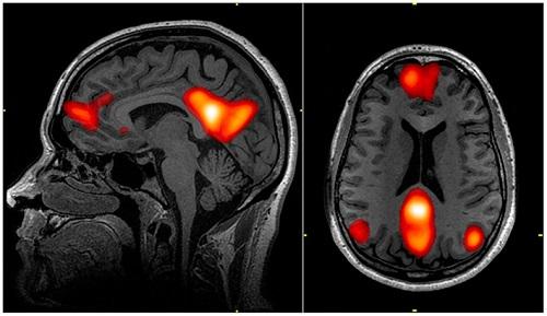 varsayilan beyin agi modu bilimfilicom