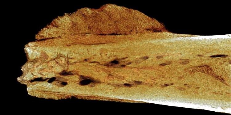 1.7 Milyon Yıl Önceye Ait Bir Kemikte Kanser Vakası Bulundu!