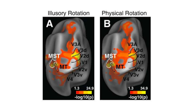 YANXIA PAN ET AL., 2016, REPRESENTATION OF ILLUSORY AND PHYSICAL ROTATIONS IN HUMAN MST, HUMAN BRAIN MAPPING © 2016 WILEY PERIODICALS, INC. ALL RIGHTS RESERVED