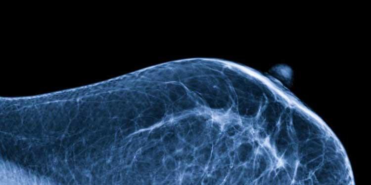 Memeler Kendi Mikrobiyomlarına Sahip ve Bu Mikrobiyomlar Meme Kanseri Riskini Etkiliyor Olabilir
