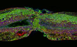 Zebra Balığında Omurilik Yenilenmesi Sağlayan Protein Keşfedildi