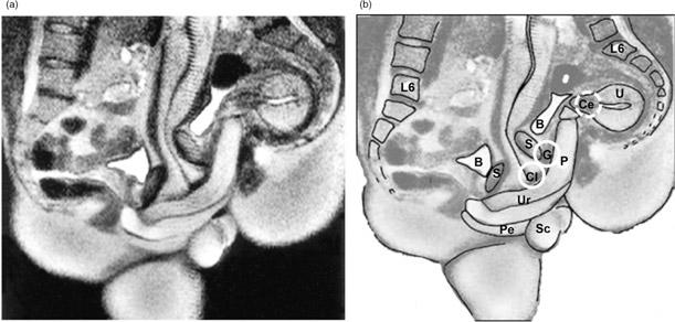 """Penisin vajina içerisine yerleştiği MRI görüntüsü. Katılımcılar misyoner pozisyonunda. Vajina şeklini kavramak için penisin """"bumerang"""" eğriliğe dikkat ediniz. Soldaki MRI görüntüsü. Sağdaki ise; klitorisin iç ve dış kısımlarının, G-noktasının, serviksin yaklaşık anatomik lokasyonları. P, penis; Cl, klitoris; G, G-noktası; Ce, serviks; Ur, üretra; Pe, apış arası (perine); U, uterus; S, simfiz; B, idrar torbası; Sc, skrotum."""
