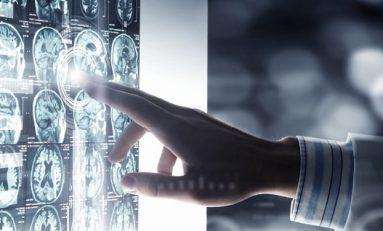 Belirsiz Gelecek Korkusu Beyinde Nasıl İşleniyor?