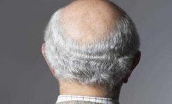 Gri Saç ve Kellik Ortak Mekanizmaya Dayanıyor