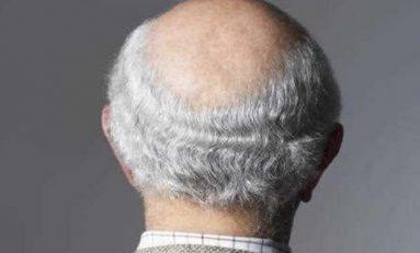 Kır Saç ve Kellik Ortak Mekanizmaya Dayanıyor