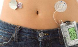Yapay Pankreas Tip 1 Diyabet Hastalarına Çare Olabilir