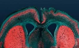 İnsan Beyni Nasıl Bu Kadar Büyüdü?