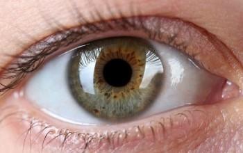 İris'teki Siyah Lekeler Güneş Yüzünden Mi Oluşuyor?